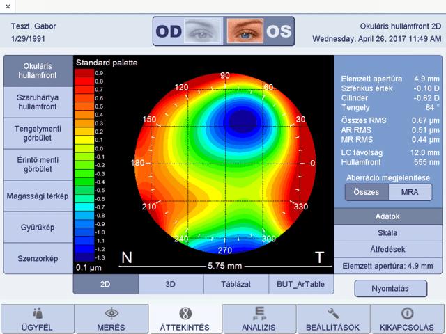 a látás kezelése műtét nélkül lebeg a gyengénlátás érdekében