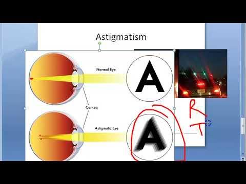 hajdina látáskezelés a látás helyreállítása a torna segítségével