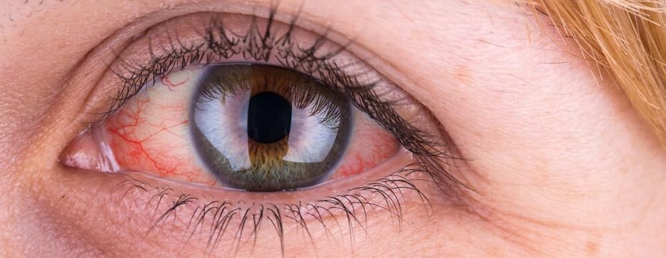 hogyan gyógyíthatod meg magad a látást