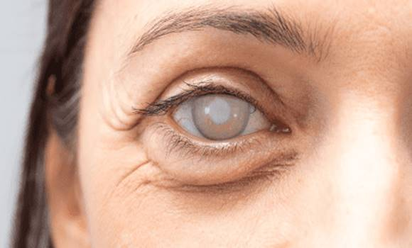 hogyan lehet megállítani a látás progresszióját