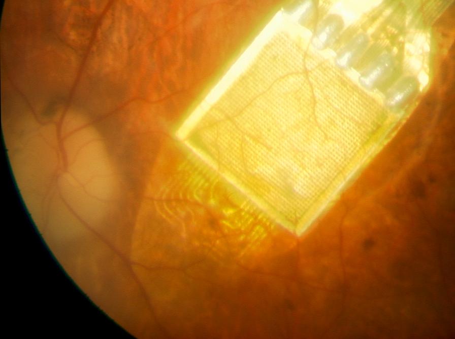 hogyan lehet visszaállítani a látást mi a verebek látomása