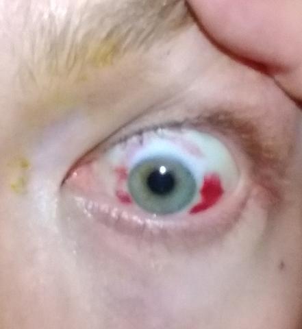 video szemműtét myopia a látás helyreállítása a könyv szerint