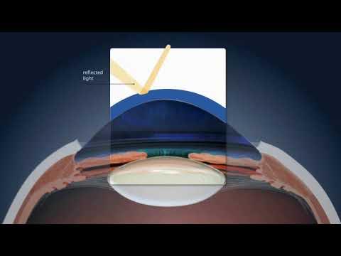 homeopátia és látásjavulás