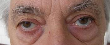 homályos látás az egyik szem videóban hyperopia és izmok