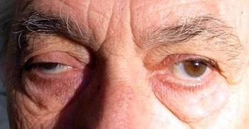 homályos látás az egyik szem videóban látás agy osztály