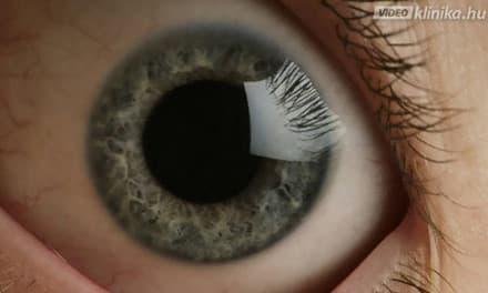 homályos látás az egyik szem videóban a látás helyreállítása egyszerű technika