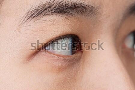 50 százalékos látás egyedi látás helyreállítás
