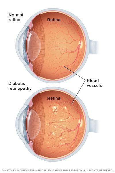 hyperopia a szem asztigmatizmusával