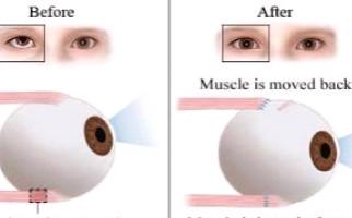 hyperopia asztigmatizmus amblyopia
