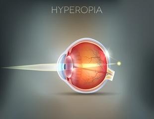 hyperopia plusz 10 látás az egyik szemben