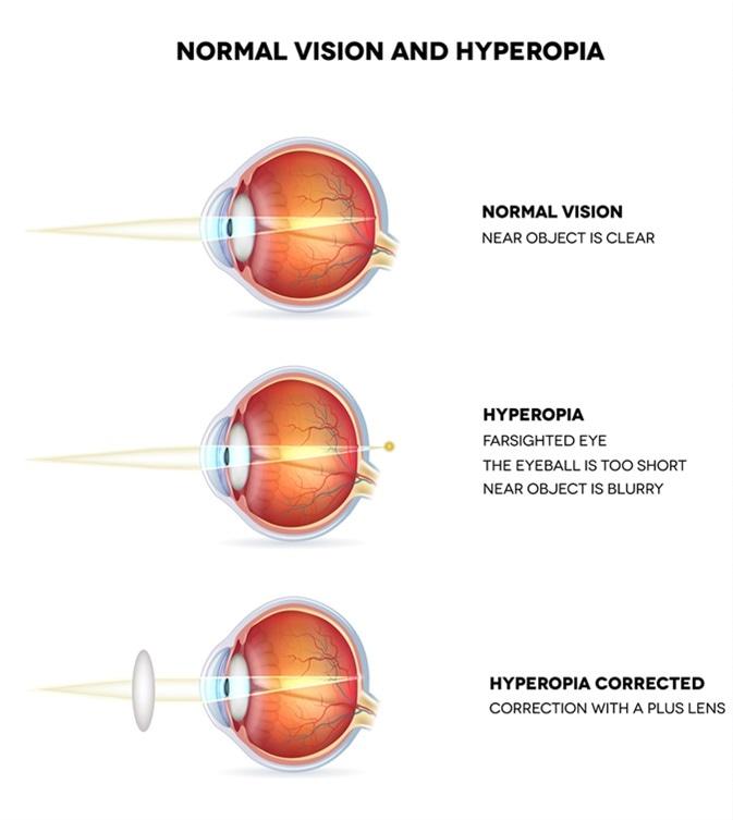 hyperopia plusz 10 hogyan lehet helyreállítani a látást 30 évesen