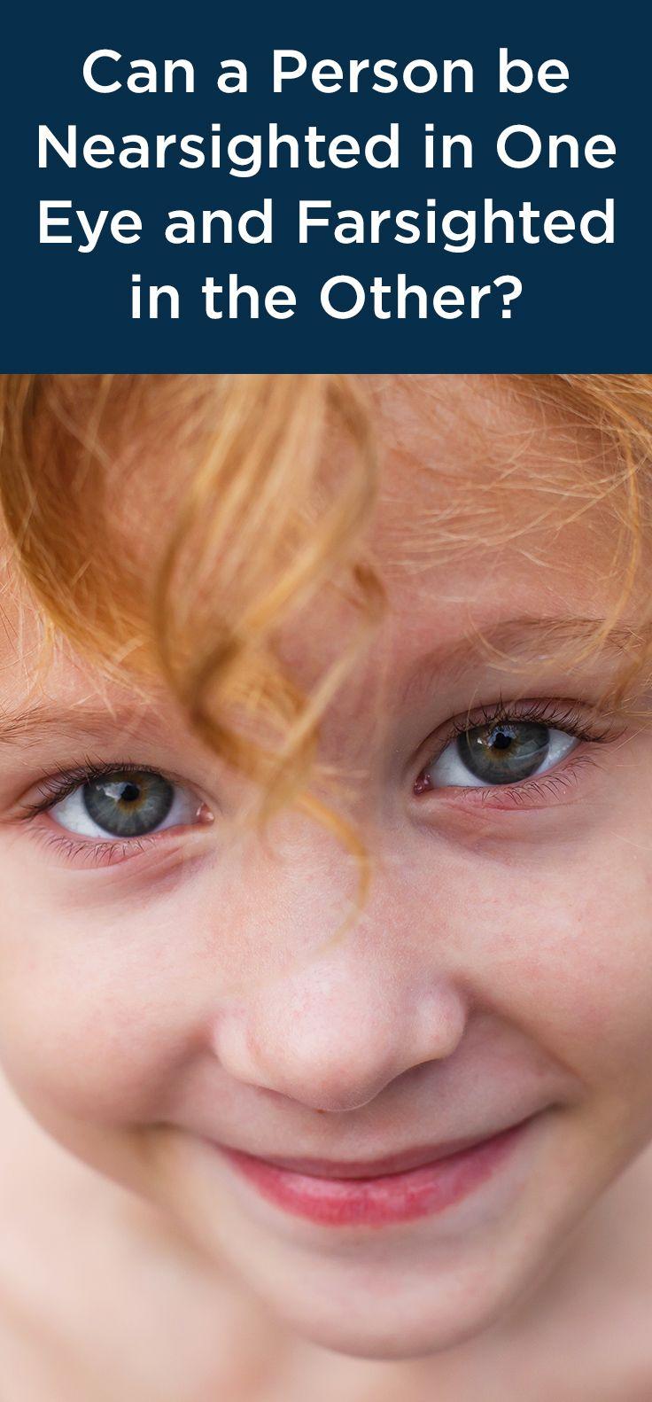 Ha a gyermek kifelé kancsalít, később rövidlátó lesz