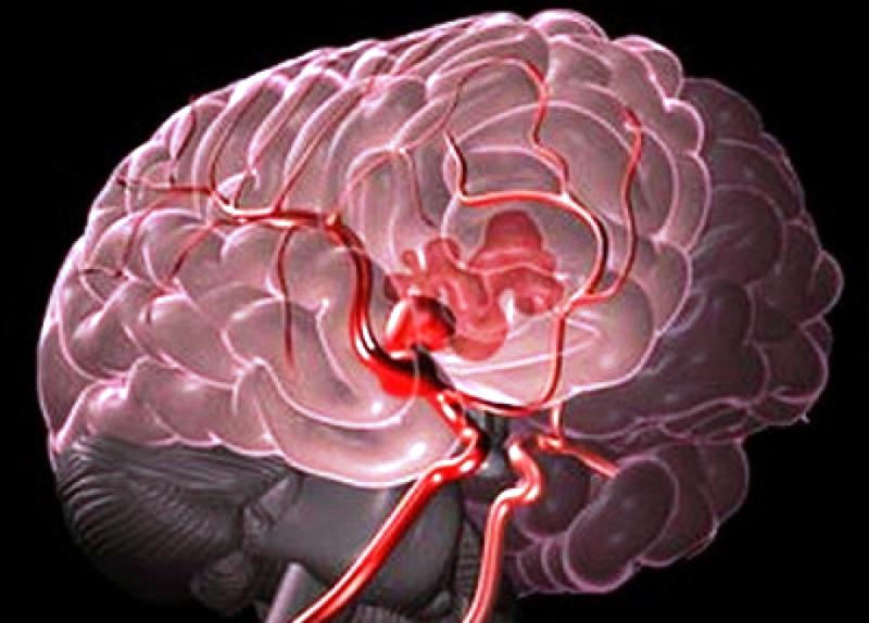 agyi bénulás fórumának gyanúja