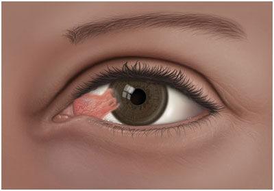 A szem sarka karcos: miért és mi a teendő?