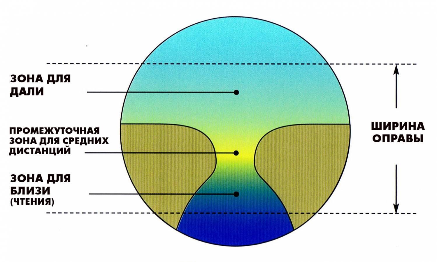 látás hyperopia plusz vagy mínusz látásvizsgálat luxusoptikában