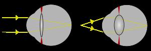 Sztereogram - A szem betegségei