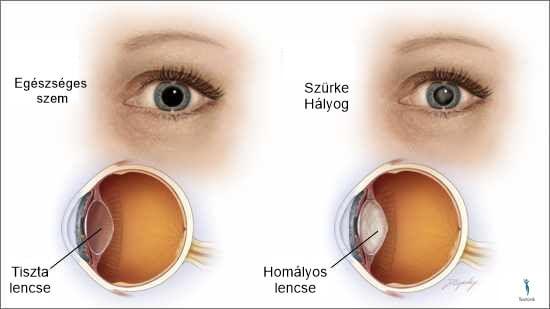 szürkehályog látásélesség myopia gyógyszeres