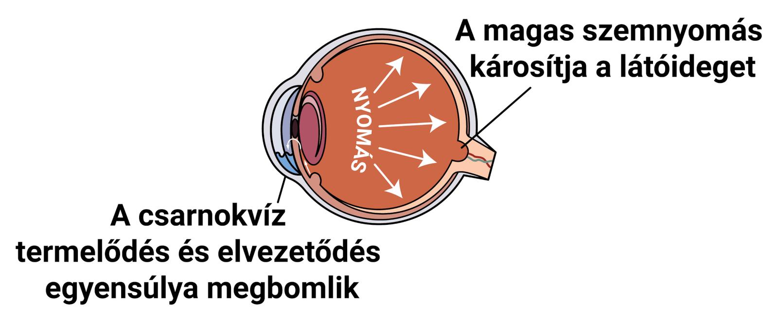 látásélesség vizsgálata atropinizáció során
