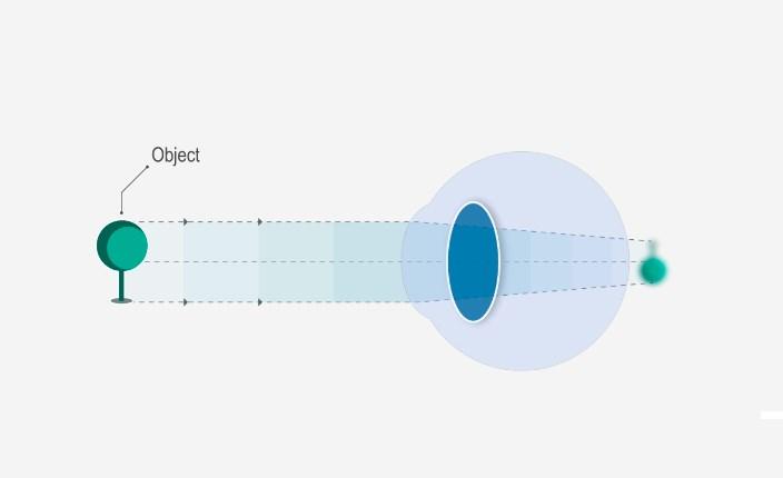 kori jellemzői vonal a látás táblázatban