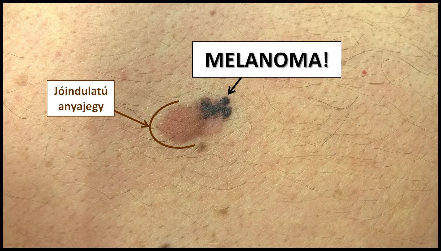 műtét melanoma gyanúja esetén patkó rák látás