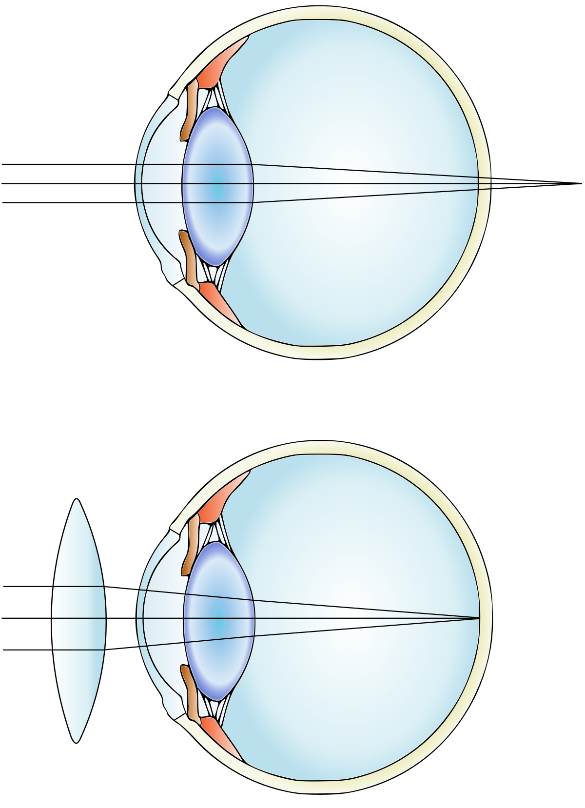 myopia és senilis hyperopia