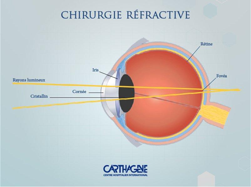myopie astigmatismus ou