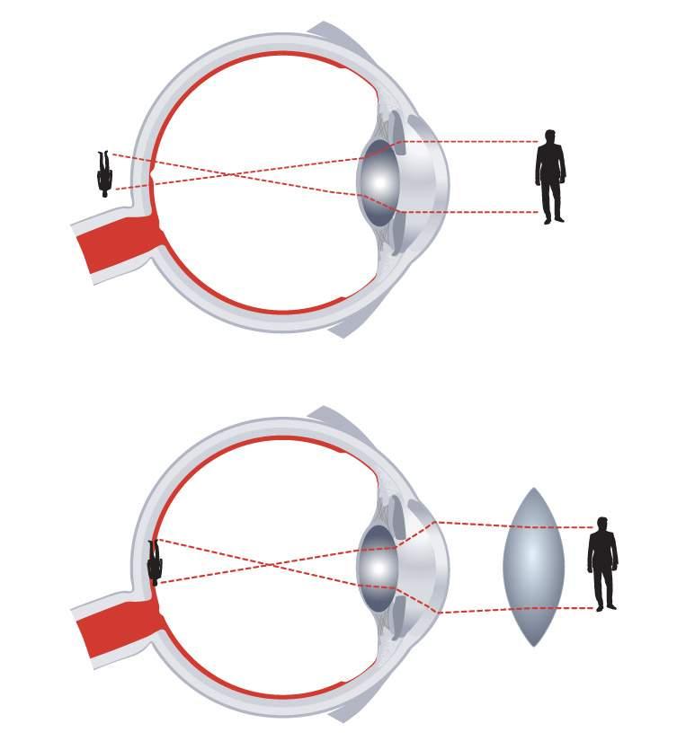 Százalékos látás rövidlátás