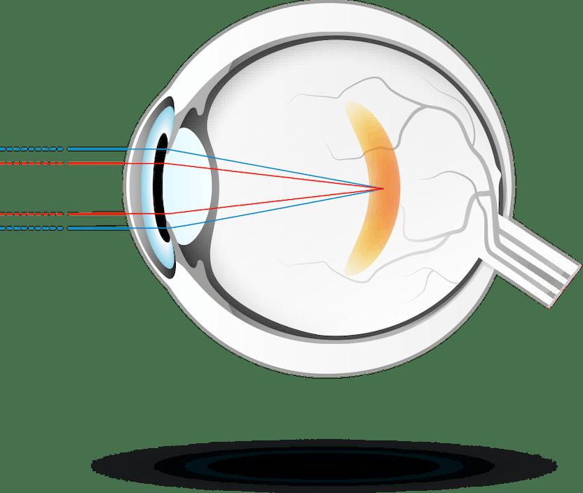 a diprospan hatása a látásra alternatív látásmód leleplezése