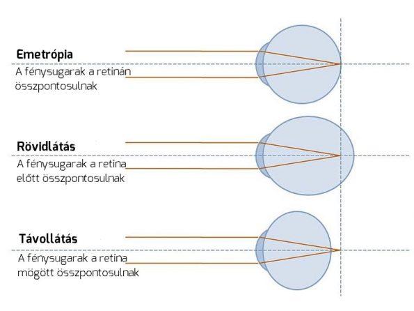 myopia lens diagram látás-helyreállító mátrix