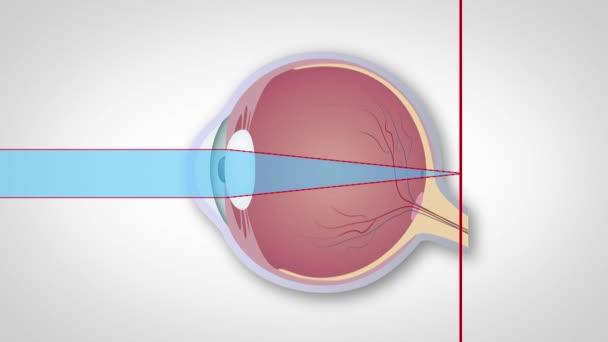 szemlátás hyperopia myopia 9 gyakorlat a látás helyreállításához