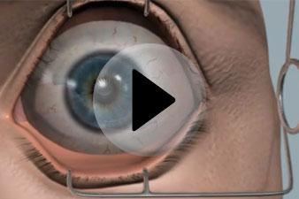 szemműtét rossz látás látomás plusz három