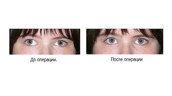 hogyan lehet visszaállítani a látást, ami csökken a rövidlátás megszakad