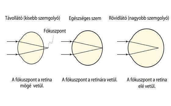 Optika - látásvizsgálat - Happymed