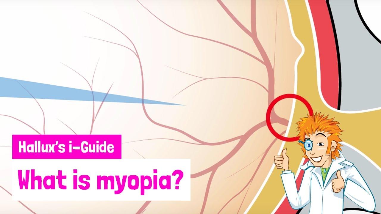 mi az életkorral összefüggő myopia)