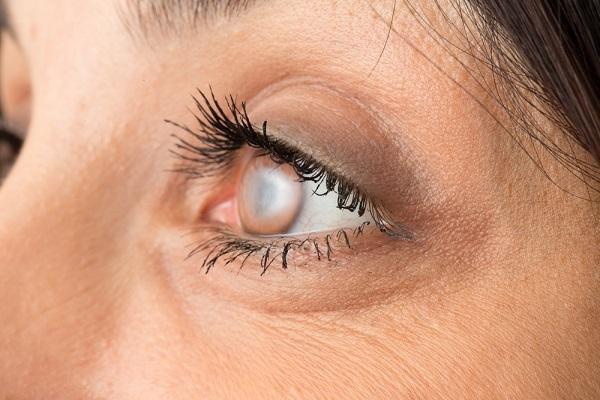 Coloboma írisz szeme - mi az, ok, kezelés, prognózis