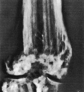 myopia osteopathia