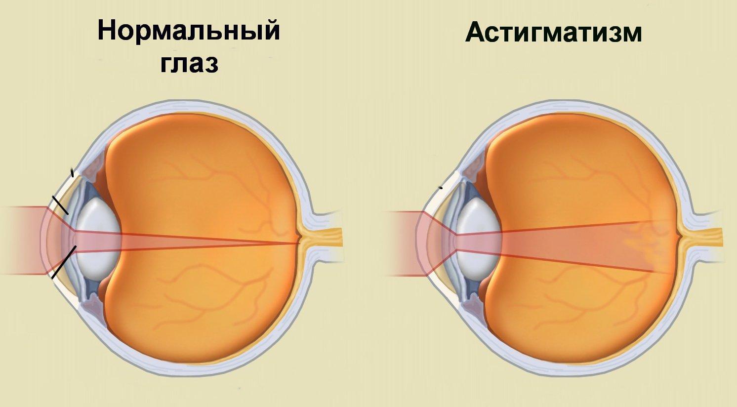 vizuális torna rövidlátással
