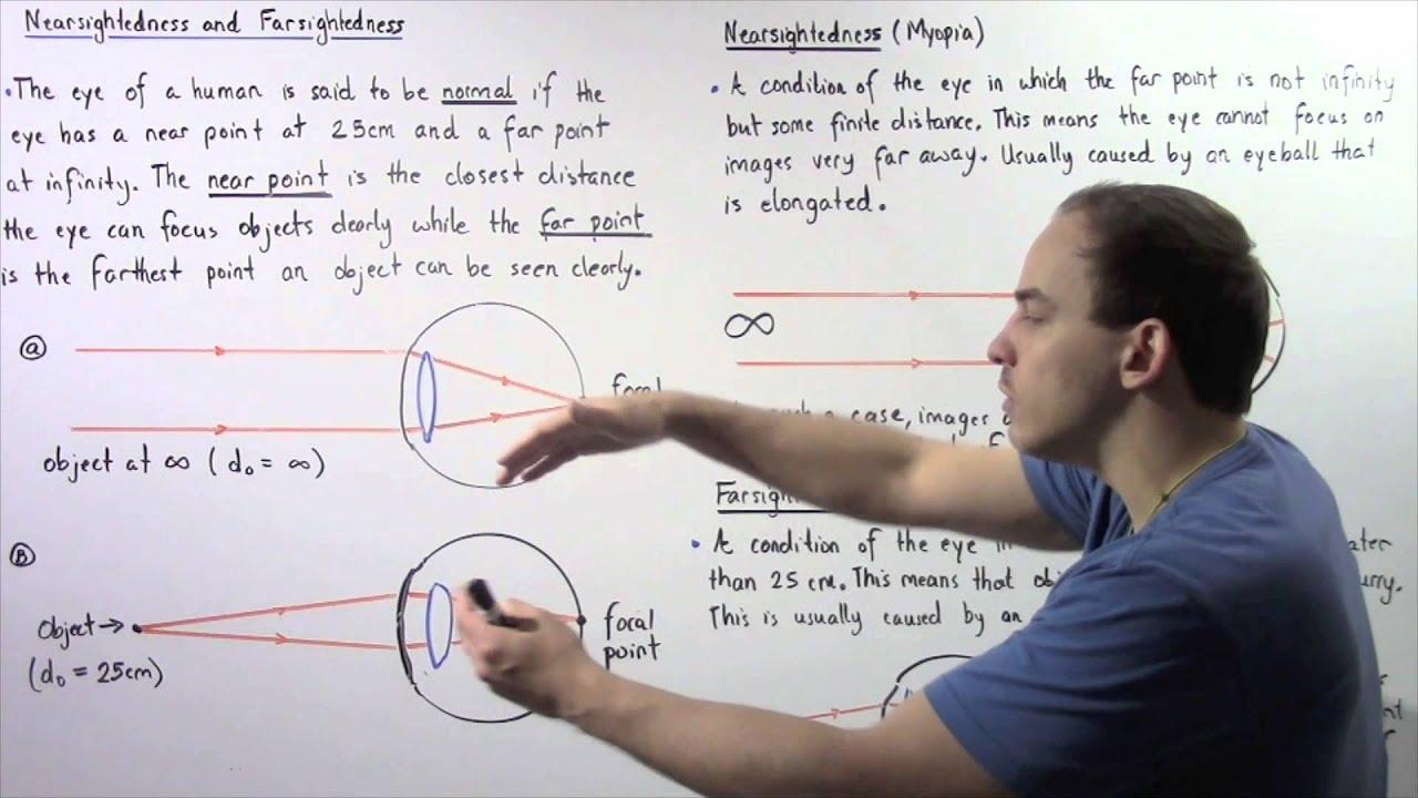 Myopia hyperopia, Az asztigmia észlelése