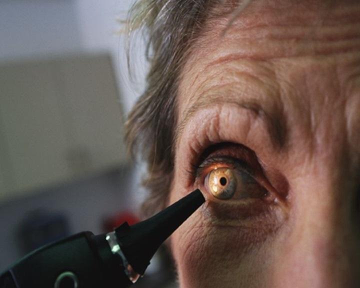 molekuláris látás mi ez javítja a látást természetes termékekkel