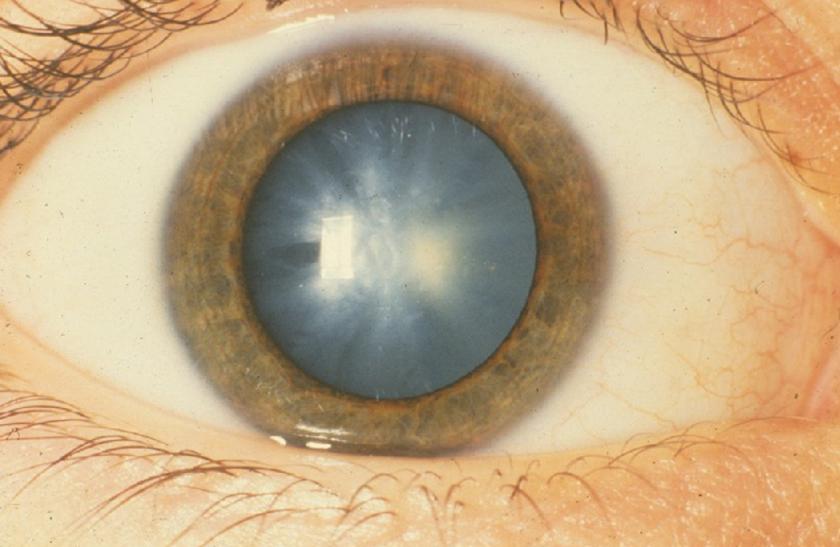 amikor a pupilla kitágul, a látás romlik