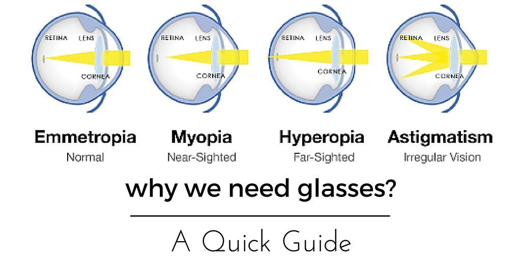 myopia hyperopia színvakság