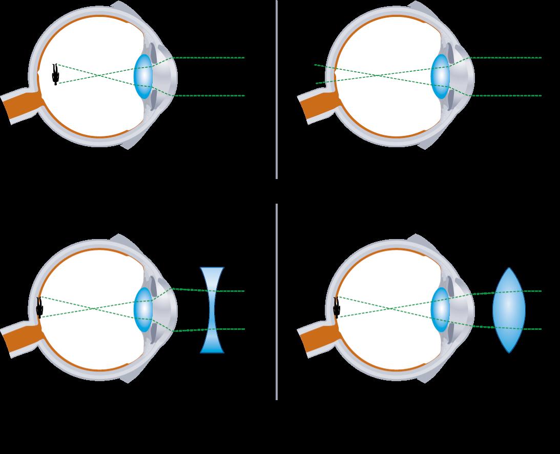 csökkent látás és szívdobogás