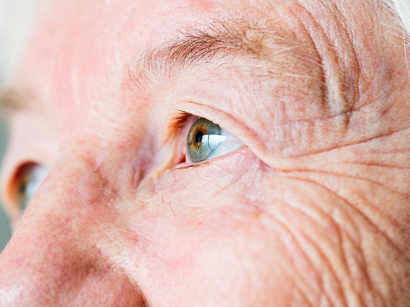 miért romlott a látás az egyik szemben