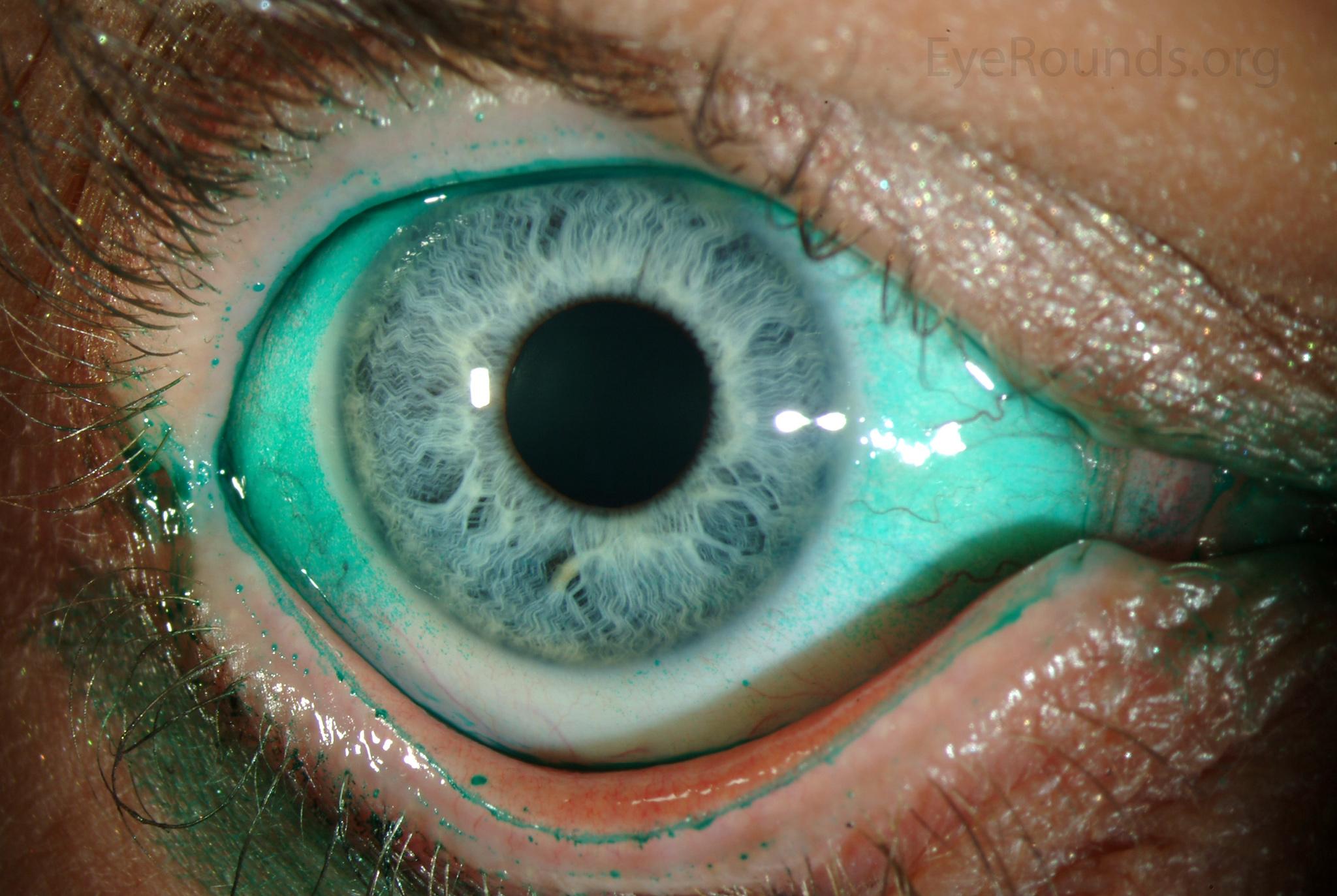 hyperopia 48 évesen gólya gyógyszer a látáshoz