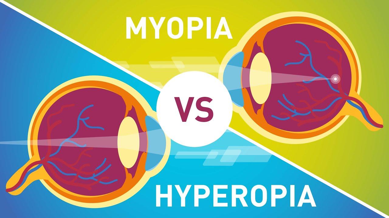Myopia kezelése áfonya csepppel