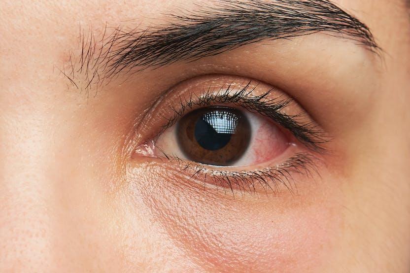 Hogyan ellenőrizheti a látást otthon - Színes vakság September