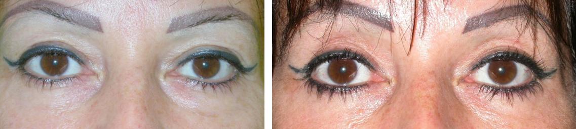 A szem alatti duzzanat: fénykép, okok és kezelés