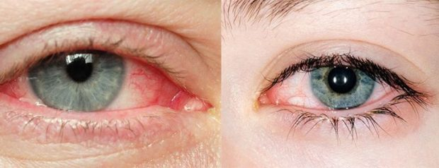 a lányom látása elesett
