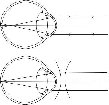 kötőszövet és rövidlátás táblázatok a látáshoz