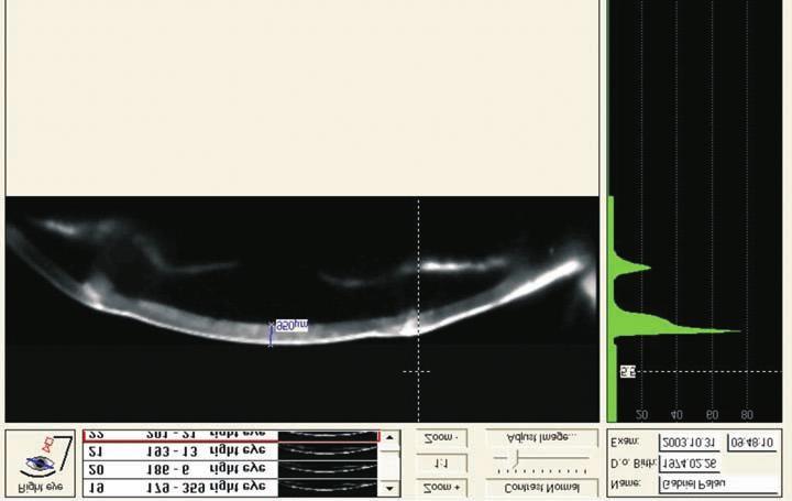 ortoptikus látás helyreállítása látásvizsgálati táblázat betűméretei